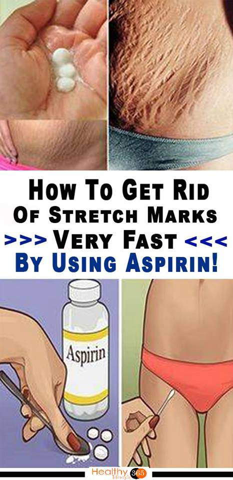 how to get rid of stretch marks on stomach fast