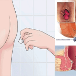 Doctors Still Can Not Find The Explanation: This Simple Remedy Can Cure Your Hemorrhoids In Just 20 Minutes!!!