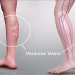 By Using Just This Ingredient, You Will Be Able to Eliminate Varicose Veins Forever!