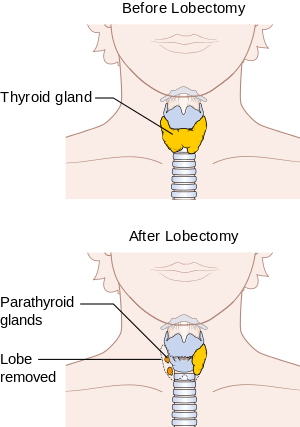 Hypothyroidism vs Hyperthyrodism | It's NOT a DietIt's
