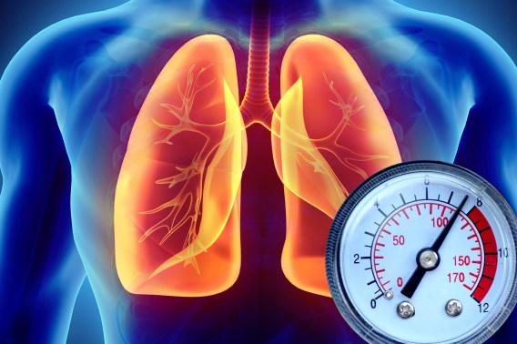 Hypertension. – Healthy Livercare Initiative