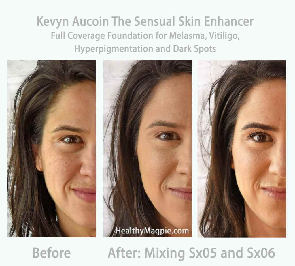 Before and After pictures and swatches: Using Sx05 and Sx06 of Kevyn Aucoin's the Sensual Skin Enhancer to mix the perfect color of full coverage foundation makeup for melasma, vitiligo, hyperpigmentation and dark spots. I just wish this concealer and foundation didn't use parabens or added fragrance / parfum.