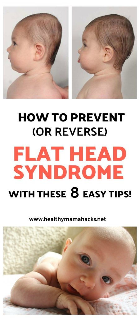 How to prevent and even reverse flat head syndrome with these 8 easy tips!