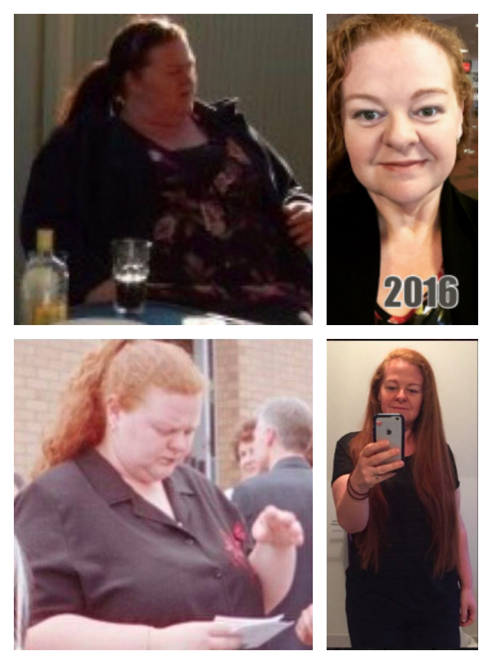 Monique Weight Loss 2016 : monique, weight, Loses, 77.5kgs*, After, Doctor,