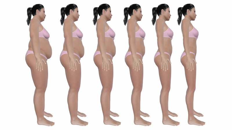 Lose Weight Without Loose Skin