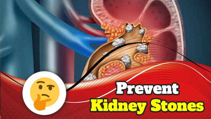 4 Simple Things You Can Do to Prevent Kidney Stones Naturally.