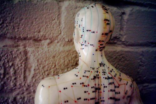 Acupuncture - Megan Cole