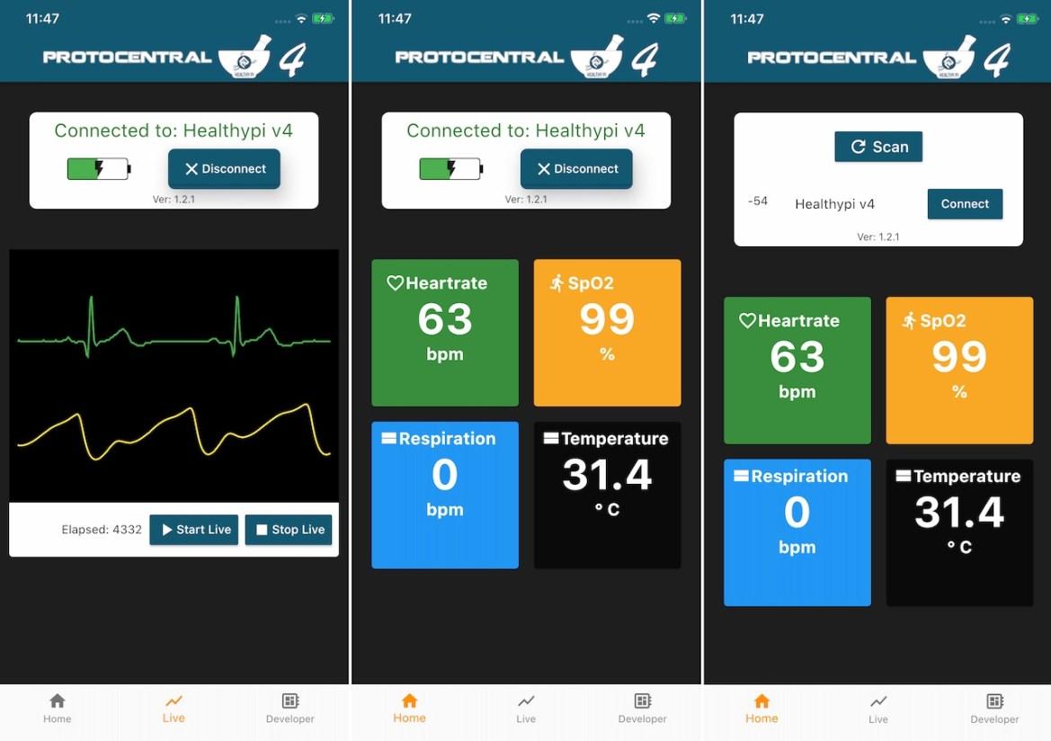 HealthyPi Mobile App