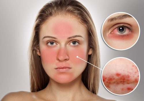 small resolution of 8 essential oils for rosacea that will help you reclaim youthful skin once again