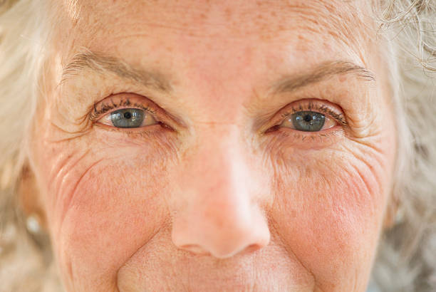 Age spots on the face
