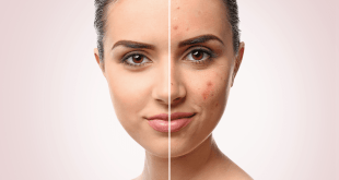 All About Typical Skin Disorders
