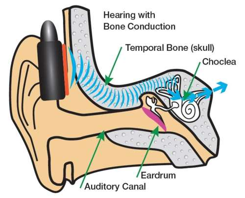 small resolution of signals that the brain perceives as sounds this is called air conduction hearing