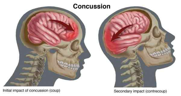 Concussion A Condition for Audiology AwarenessJudy Huch