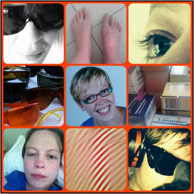 Negen afbeeldingen die een beeld geven van 'We is Me'. Mijn glimlach. Mijn ogen. 'Lam' oog. Mijn gekleurde overzetbrillen tegen het licht. Mijn medicijnen. Duizelingen. Mogelijk dystrofie rechtervoet.