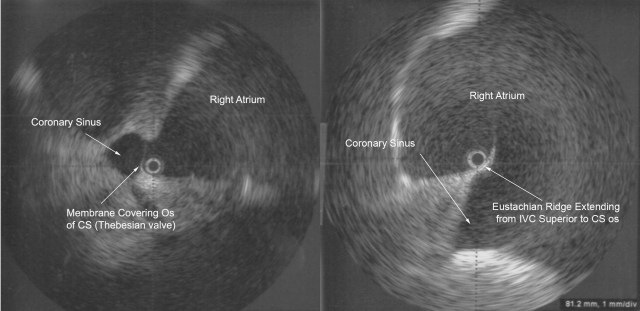 Figure 5  Radial ICE Imaging of CS Anatomic Variants.