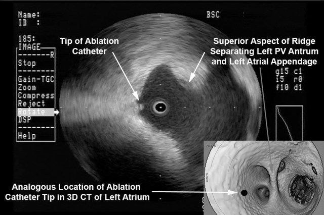Intra Left Atrial Radial ICE Imaging During Atrial Fibrillation Ablation Left Pulmonary Venous Antrum Isolation