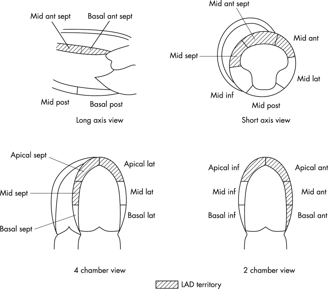 Coronary Flow Velocityysis During Short Term Follow
