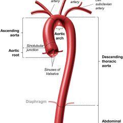 Large Heart Diagram Label Harga Sunpro Super Nano Propolis Aortopathies In Adult Congenital Disease And Genetic