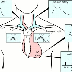 Heart Sounds Diagram Cat5e Wire The Diagnosis Of Hypertrophic Cardiomyopathy
