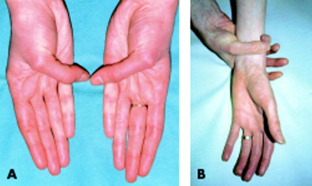 Management of Marfan syndrome  Heart