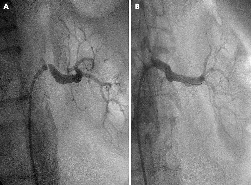 Arteriosclerotic Renal Artery Stenosis Conservative