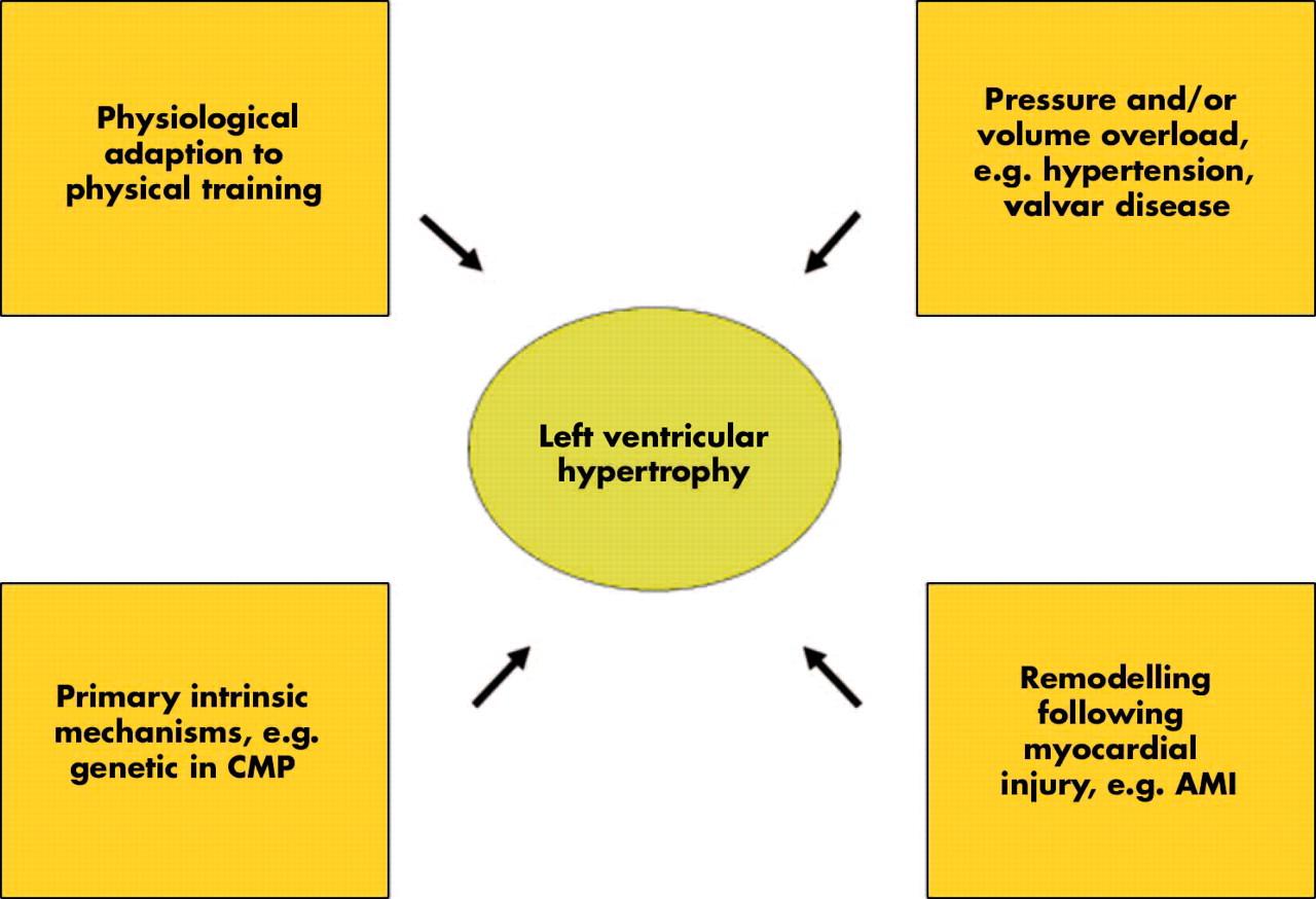 Cardiovascular Disease Diagram Left Ventricular Hypertrophy In Hypertension Its