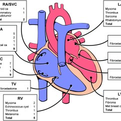 Large Heart Diagram Label 2001 Ford Ranger Motor Cardiac Tumours Diagnosis And Management