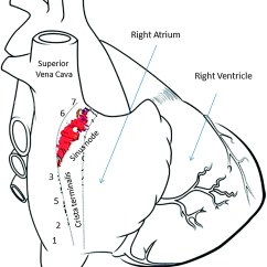 Heart Diagram Nodes Wiring For Ruud Hot Water Heater 112 Location Of Subsidiary Atrial Pacemakers Following