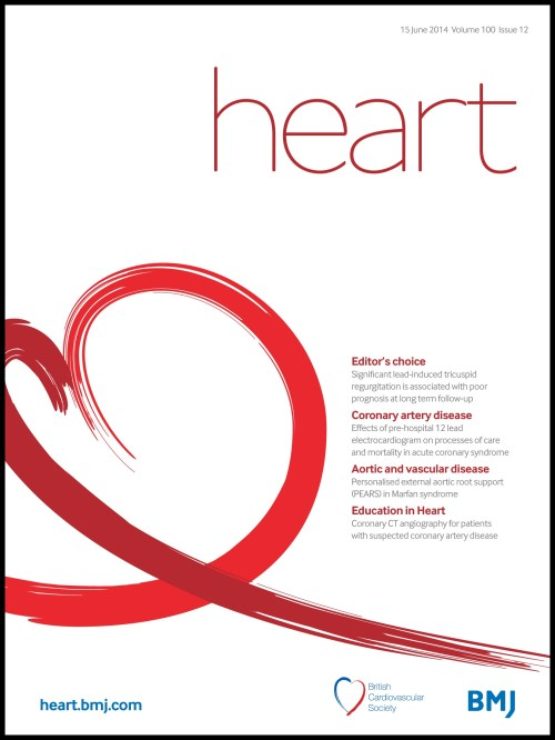 small resolution of effects of prehospital 12 lead ecg on processes of care and mortality in acute coronary syndrome a linked cohort study from the myocardial ischaemia