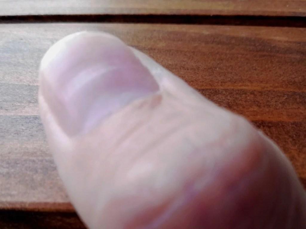爪が凹んでいた/ツメのくぼみは病気のサインだと心臓疾患の病後に知る