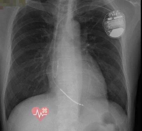 私の胸に植込んだICDのレントゲン写真
