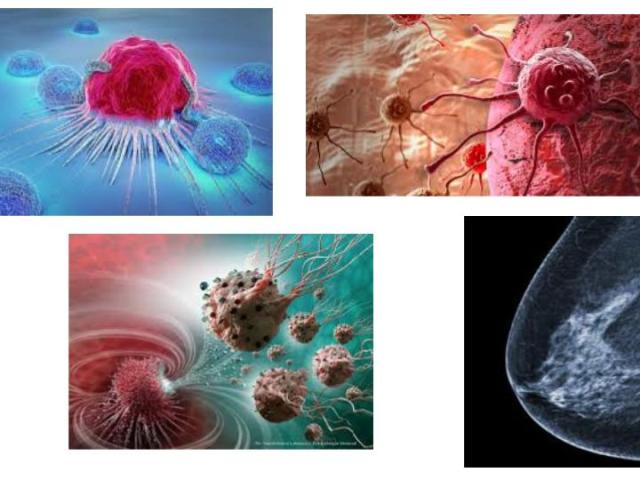 cancer ayurveda arbuda