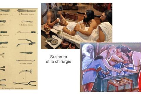 #sushrutasamhita #sushrutaayurveda #chirurigieayurveda #sushrut