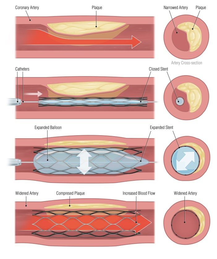 bigstock-stent-43471027