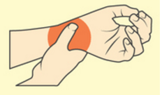carpal tunnel syndrome in software professionals