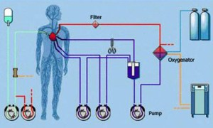 What is a Heart Lung Machine?