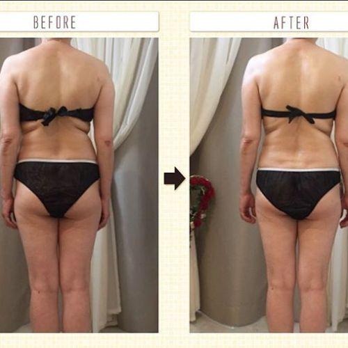 AKIKO'sエステ軟部組織筋膜リリース、大好評をいただいでおります❣️1回でこの様な結果が出ます。グンと下がった右側が両肩均一になり、背中と腰回りは見違えるほどスッキリ。お尻や太ももは、ひと回り小さくなっています。本格始動し始めて1ヶ月半。リーピートの方々に、「身体が本当に楽。」「今まで入らなかったスカートやパンツが履ける様に!」「少し動いただけで汗をかくようになった」「便秘が治った」「いつも、靴に甲が当たるところがあって痛かったが当たらなくなった」「痩せた?って言われた♡」などなどのご意見をいただいでおります。皮膚のねじれから改善し、身体の歪みを整えていく軟部組織筋膜リリース。痛みは無く気持ちが良くて眠ってしまう方ばかり。ふわふわの足の裏、是非味わっていただきたい♡#軟部組織筋膜リリース#エステ#高崎美容室 @akikokiakikoki