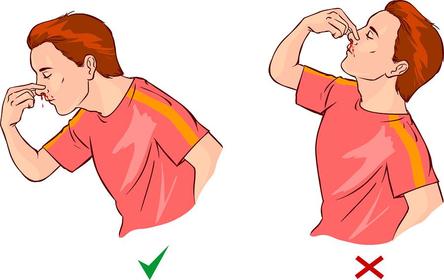 aiding a nosebleed
