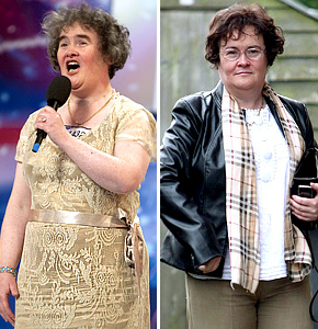 Susan Boyle, before and after?
