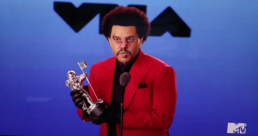 What Happened to The Weeknd's Face? Singer Appears Bruised ...