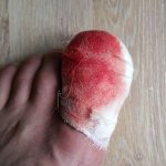 toe-trauma-after0operation