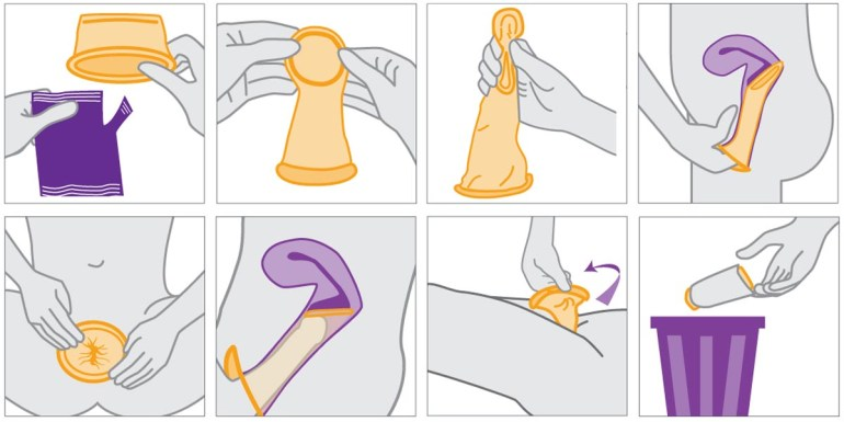 Female Condom How-to Illustration - Hedonish.com