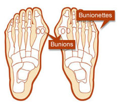 bunion pain relief home remedies