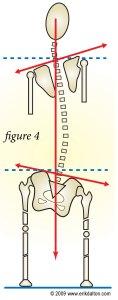 Skeleton Showing Uneven Leg Length Symptoms