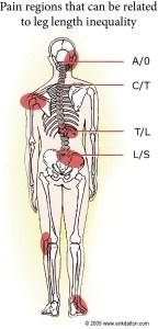 Skeleton Showing Leg Length Discrepancy Pain Regions