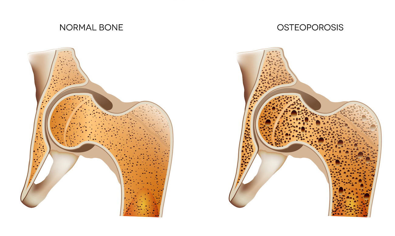 osteoporosis height loss