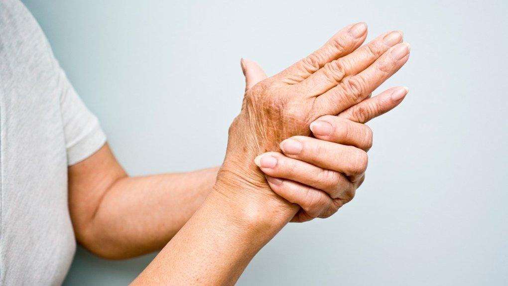 Arthritis and CBD Guidlines