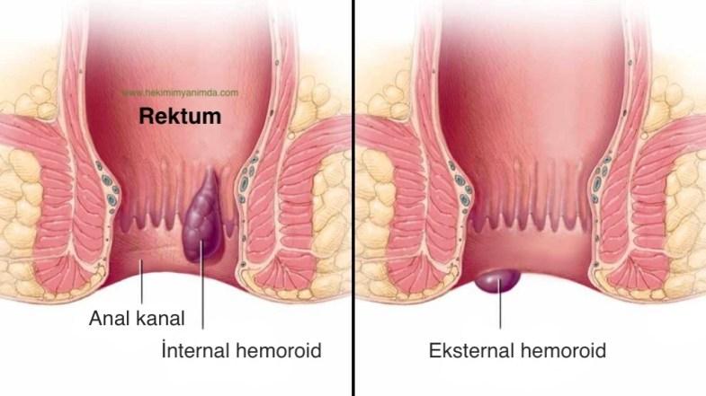 internal (iç) ve eksternal (dış) hemoroid temsili görseli
