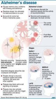 alzheimers-diseases-graph