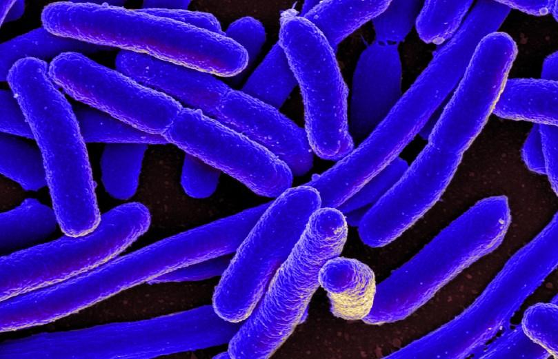 Poza a bacteriei Escherichia Coli